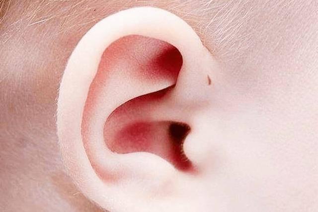 """为何有些孩子耳朵上会有""""小孔"""",医生没有直接讲,家长也要知道"""