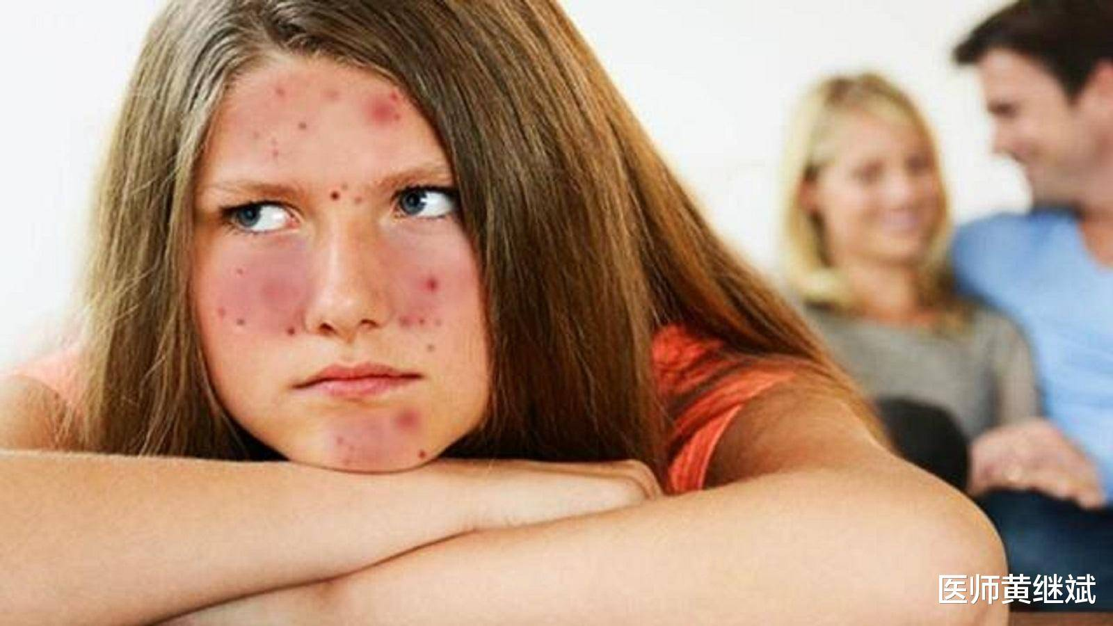 原创夏季容易上火长痘,身体可能需要排毒,吃什么食物能快速消痘?