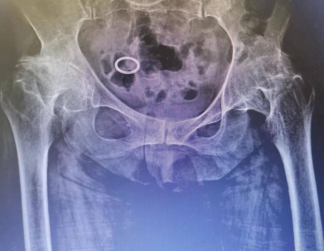 滑膜炎颗粒图片