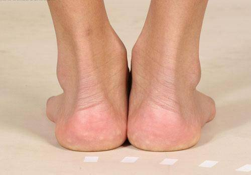 为什么多数糖尿病患者脚后跟都容易疼?有两大原因,教您如何缓解 营养补剂 第1张
