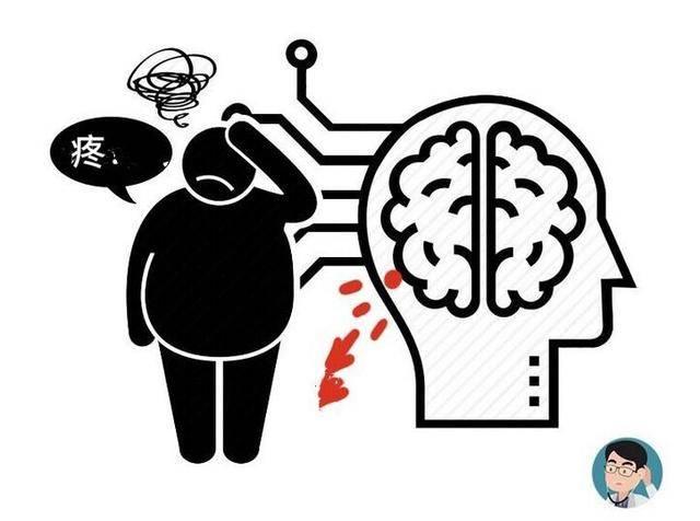 若3个症状全都没有,恭喜你脑血管还很通畅,4类人不妨自测! 营养补剂 第5张