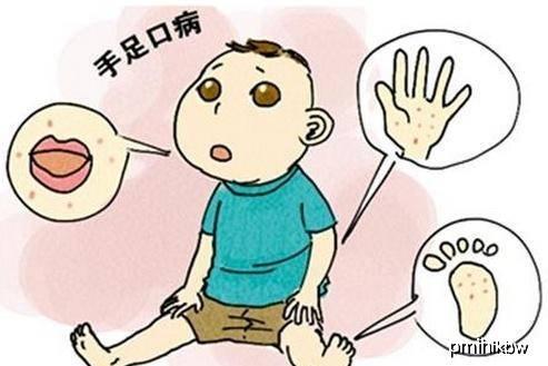 关于手足口病的4个核心问题,妈妈们都应该知道答案,早知道受益