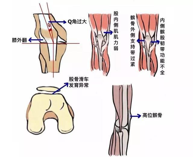 """关节痛、打软腿、老摔跤?你的髌骨可能""""脱轨""""了"""