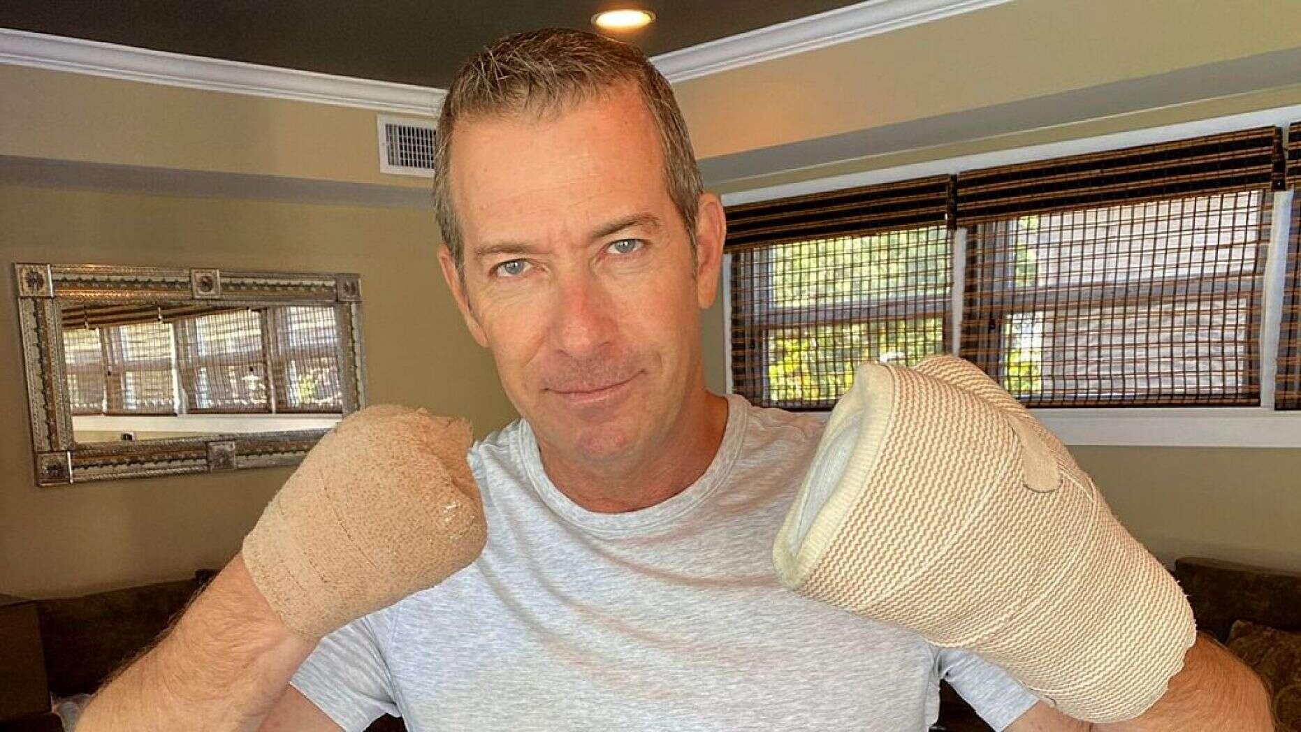 FoxNews:美国一男子因新冠肺炎重症截掉几乎所有的手指