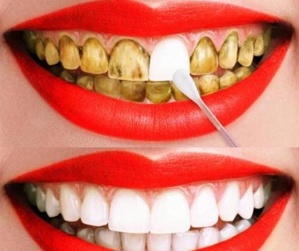 2.使用牙贴或者牙齿清洁剂 牙齿里面黄黄