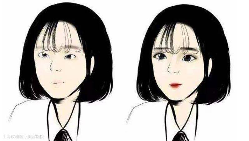 如何看待高考生扎堆割雙眼皮 雙眼皮基因是顯性還是隱?