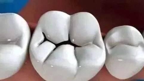 为什么后槽牙上,总能看见大小不一的黑线?根本原因不是没刷干净