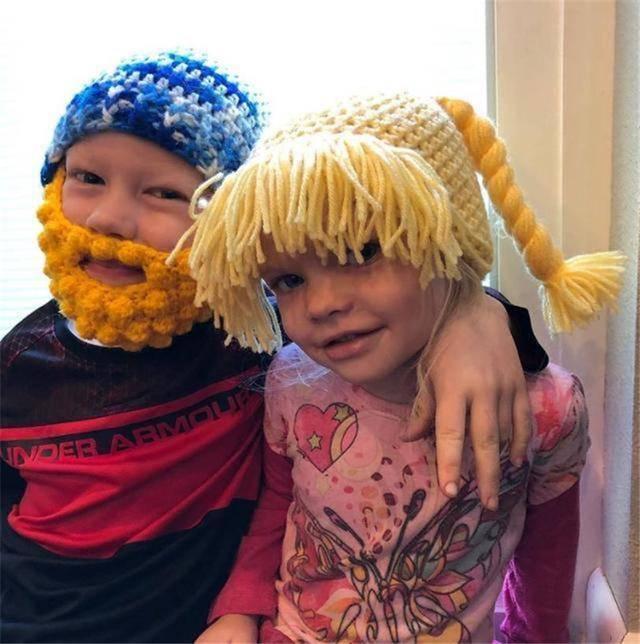 6岁哥哥为保护妹妹,脸上缝了90多针,美国队长:你是一个英雄