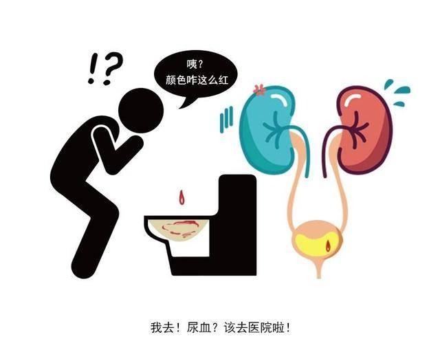 前列腺出现癌细胞,排尿出现4个异常!若占2个以上,劝你及时就医