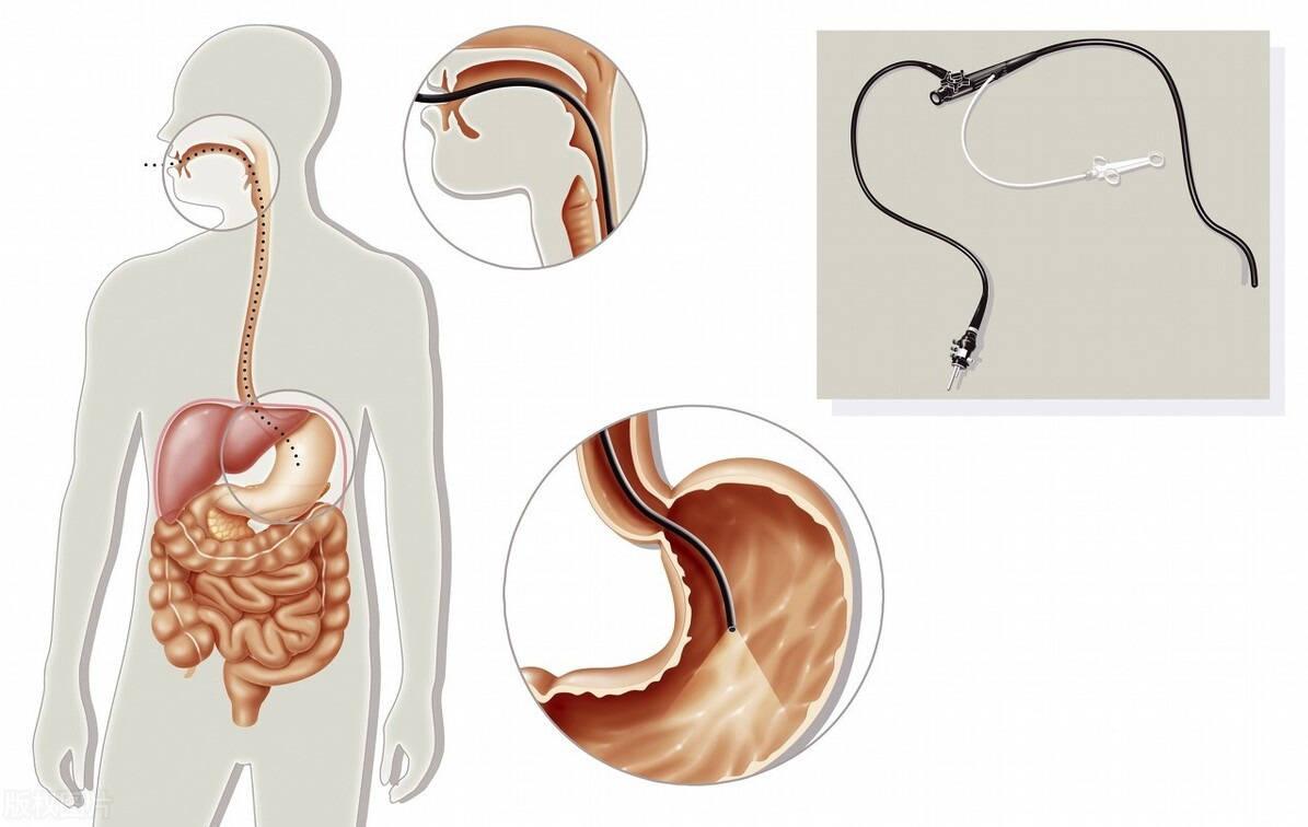 古今医案研究:息肉只剪了三个月 长了六七个黄豆息肉