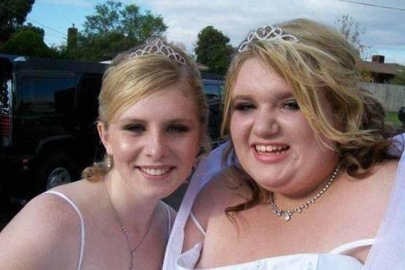 27岁女孩体重400斤,用5年时间减肥280斤,从胖妞变美妞