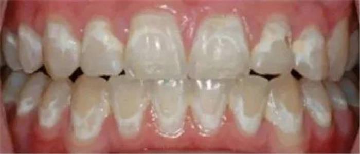 矫正牙齿为什么会造成牙齿脱矿?