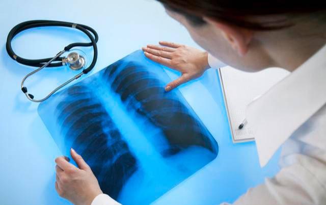 肺癌在中国发病最多、死亡率最高,致病元凶有哪些?主要有这3个