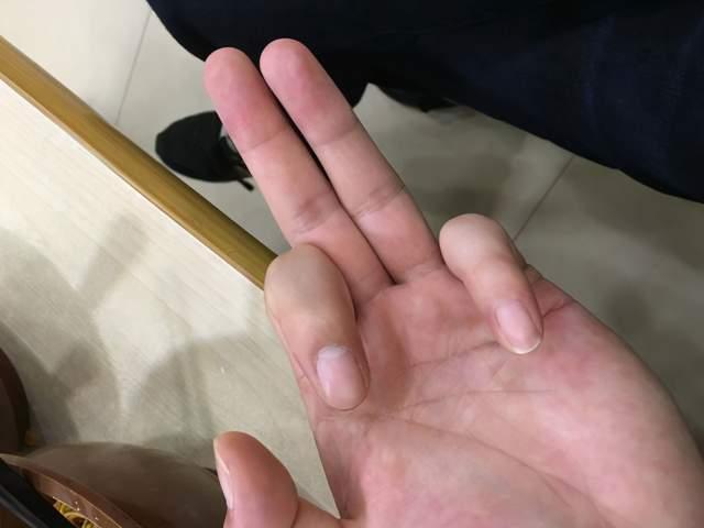 测血糖扎哪个手指最好?糖尿病协会告诉你,效果最准的3个手指