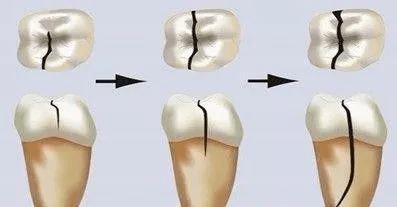 牙齿早衰的六大信号,你有吗?