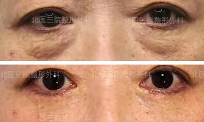 案例分享:去掉眼袋