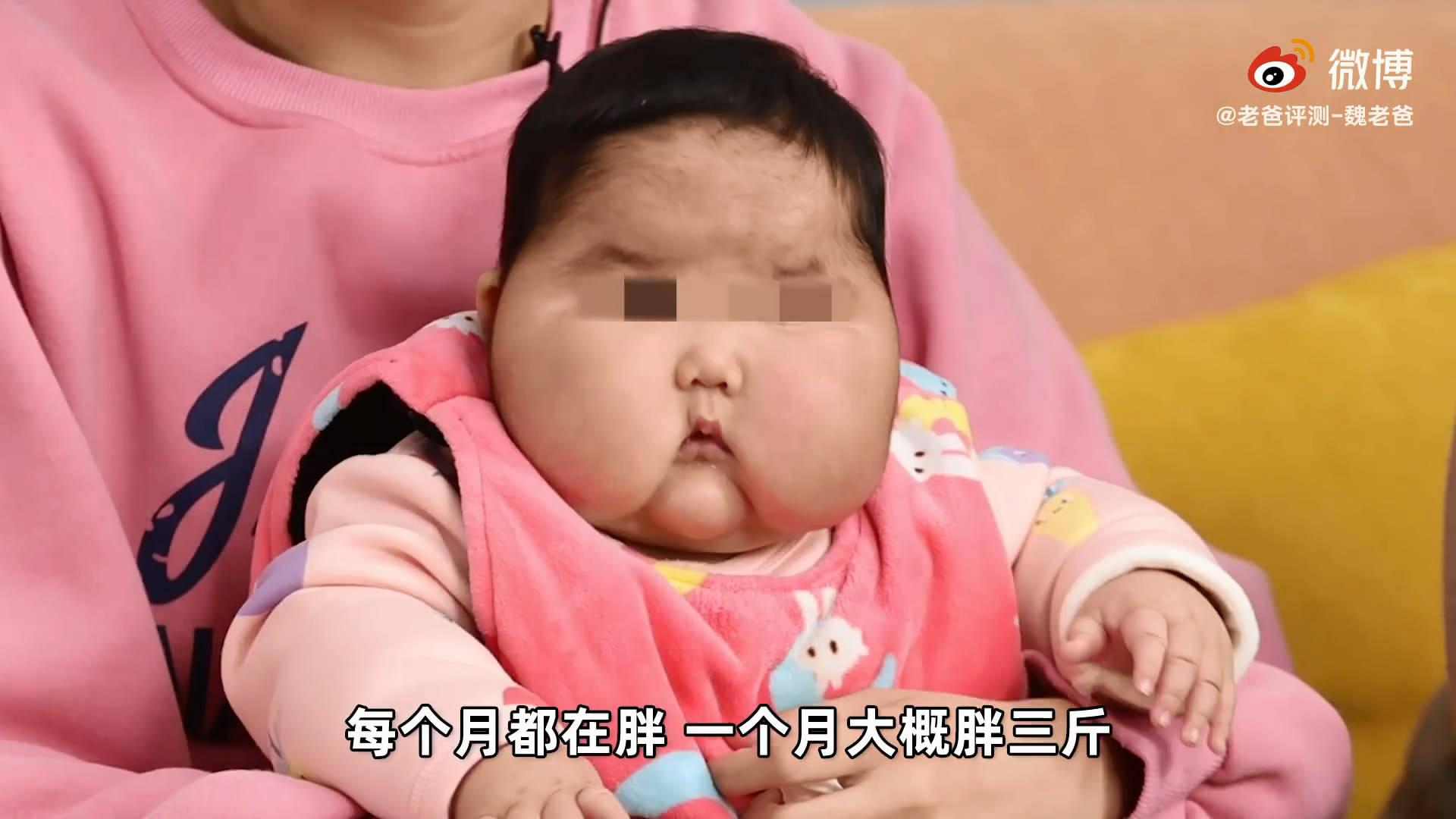 婴儿用抑菌霜成大头娃娃?医院检查一切正常,厂家称家长在炒作  第2张