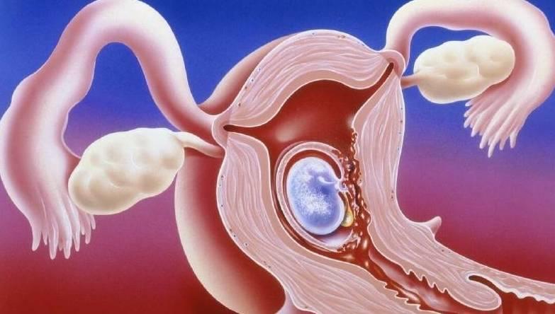 5种常见的避孕方式,第4种对女性伤害最小,第3种男性较排斥