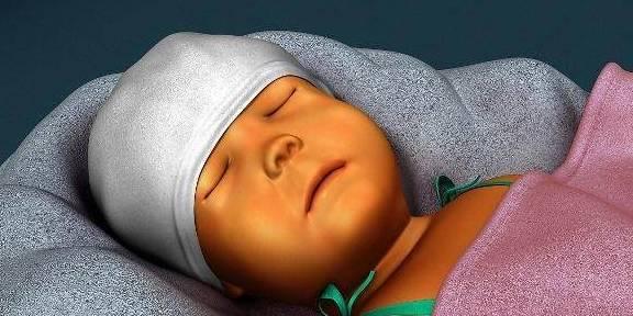 消除新生儿黄疸的3个小妙招,新手宝妈赶快行动起来吧!
