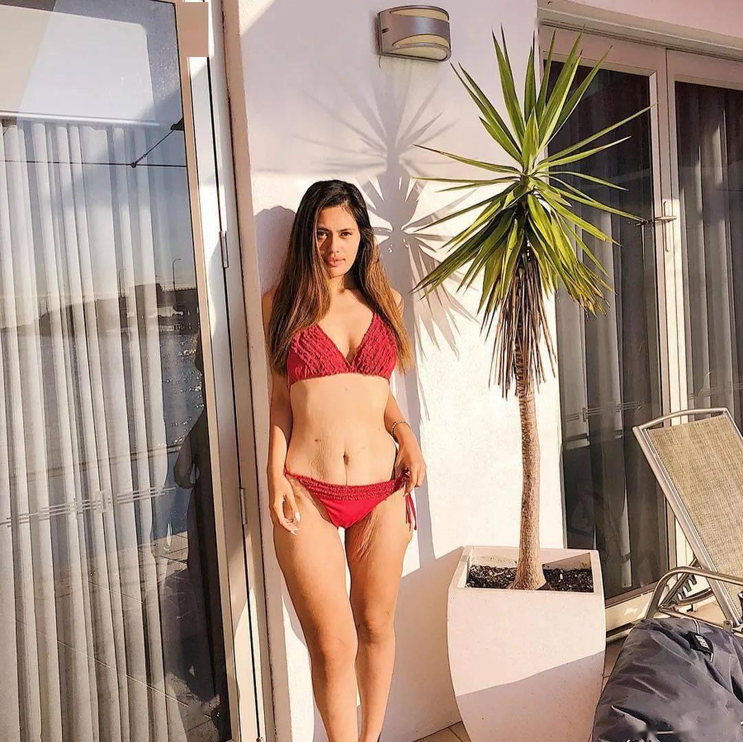 新西兰网红胖妹切胃瘦掉136斤:但凡自律能减肥也不至于动刀了