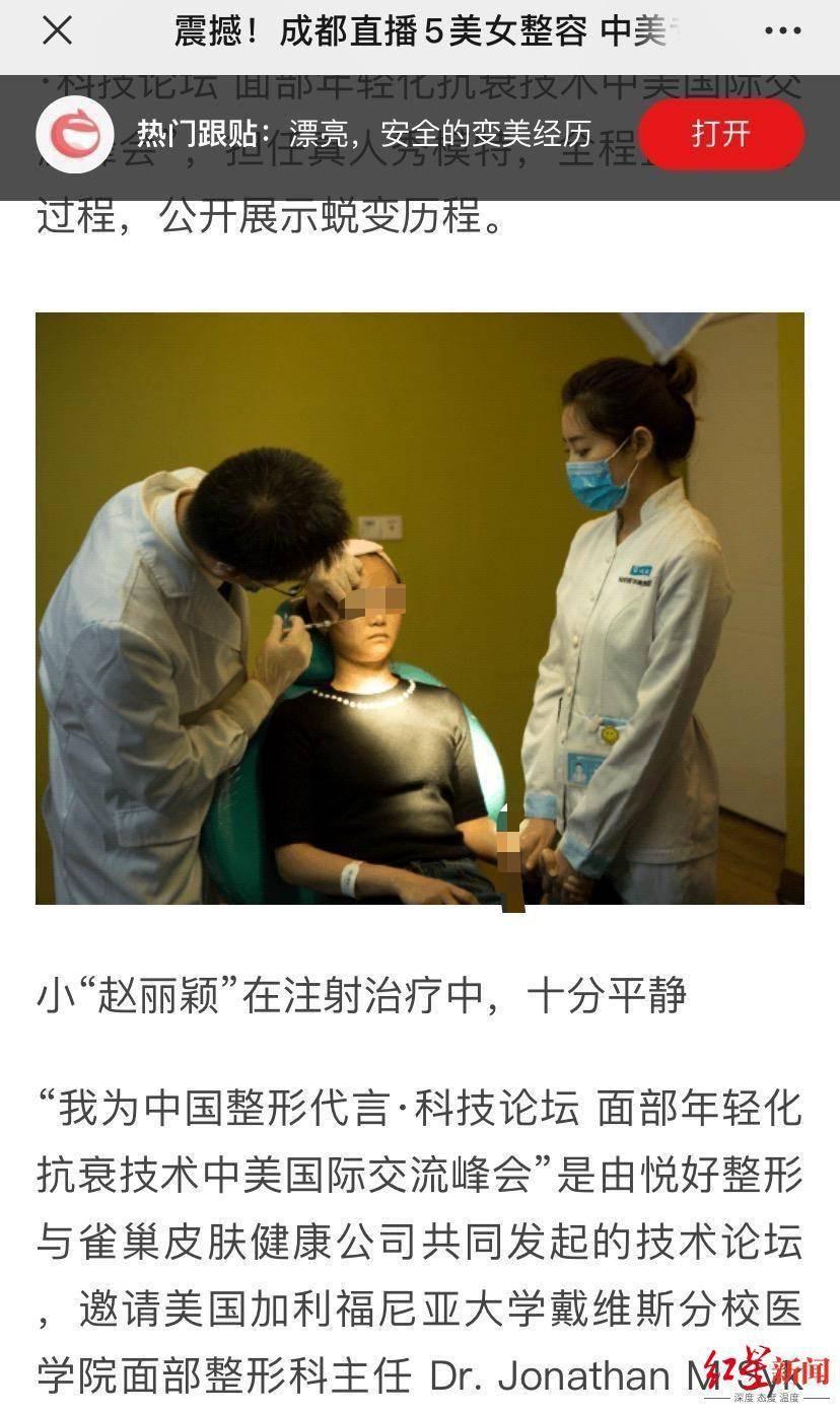 """恒达官网整形悲剧:""""成都赵丽颖""""没当成,鼻子还变形 院方:手术确实出了问题 (图6)"""