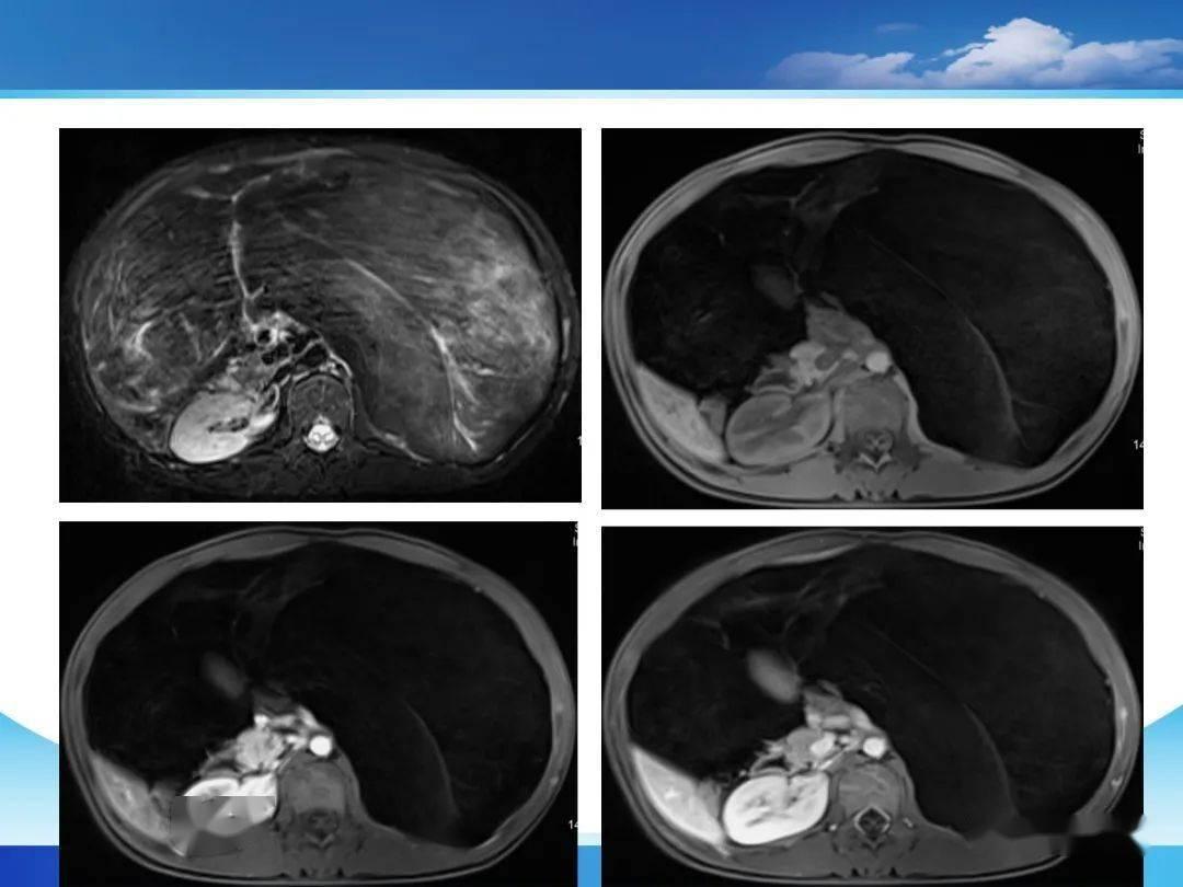 脂肪肉瘤图片