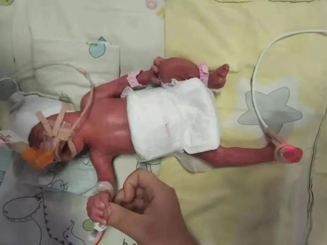国药同煤总医院新生儿科上演《生命的托付》