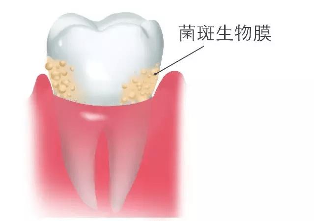 牙线有必要每天使用吗(用牙线会使牙缝变大吗)插图
