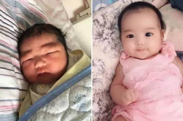 """""""最美女婴""""VS""""皱巴男婴"""":新生儿的颜值差距为啥会这么大"""