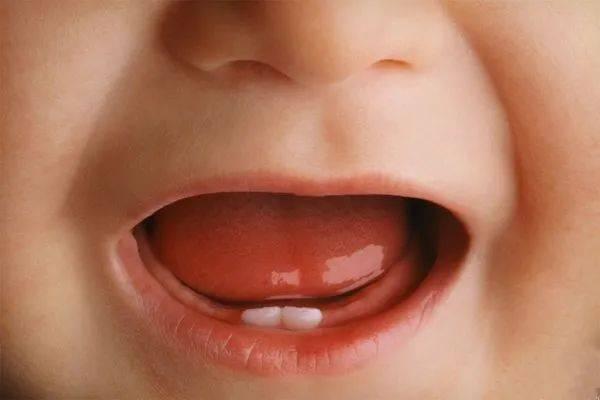 宝宝长出乳牙了,妈妈在喂奶时,如何避免自己被宝宝的乳牙咬伤?  第5张