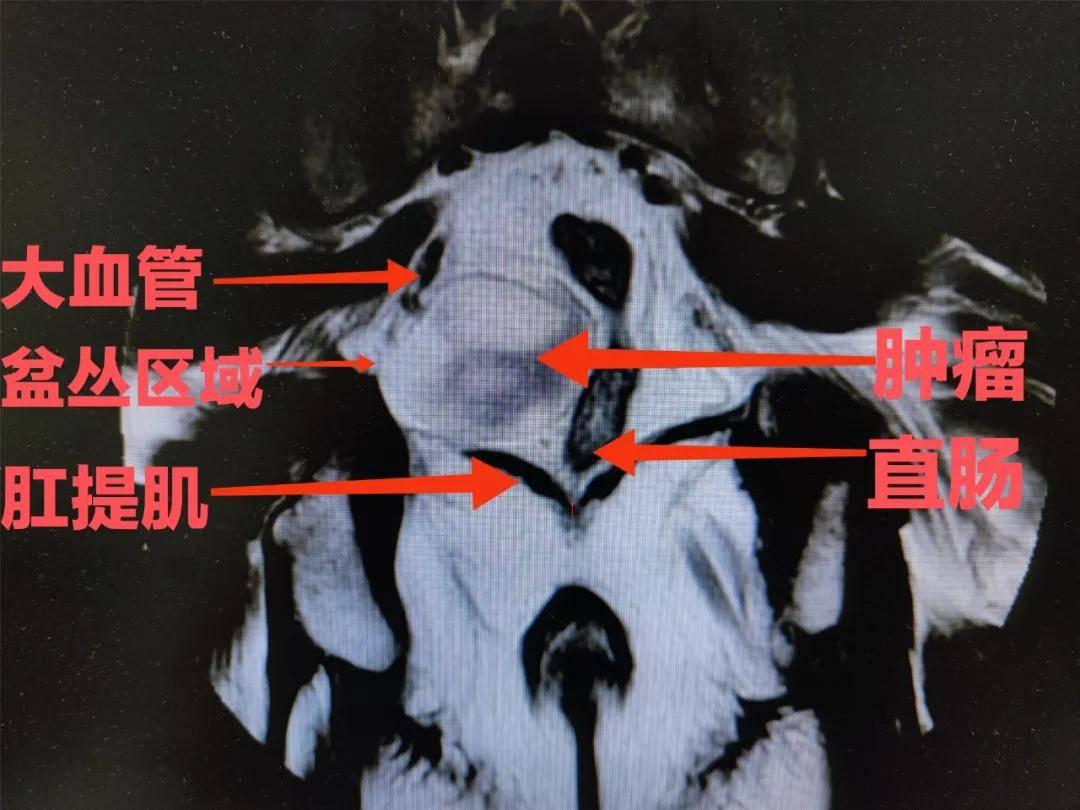 再难都不会放弃!记一例全腹腔镜下盆底肿瘤微创切除术