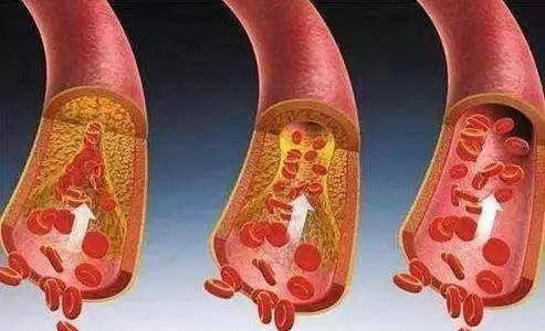 """7类天然的""""防栓药"""",若能常吃,软化血管,清血管垃圾,防血栓"""