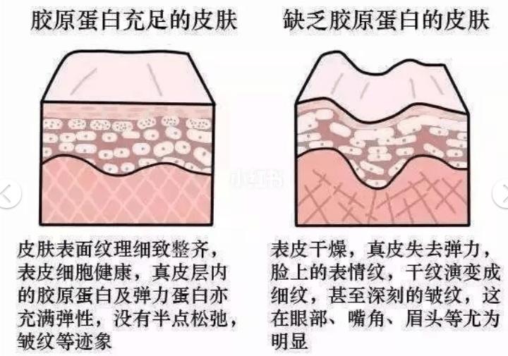 谁知道:吃什么补脸上的胶原蛋白?ACME-TEA修复型胶原蛋白效果好