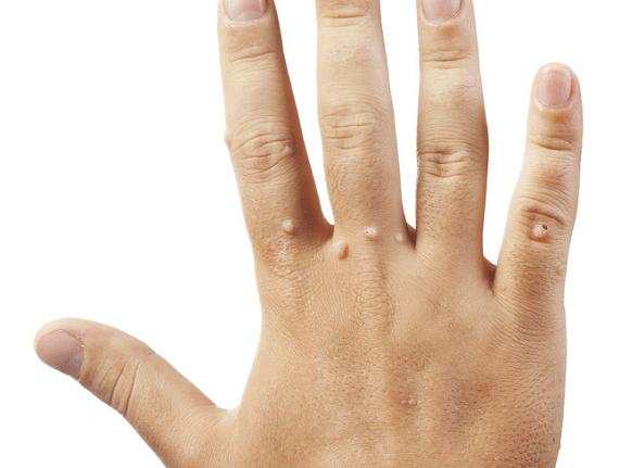 無論男女,面板出現3種「異常」,可能是感染HPV,早了解早治療