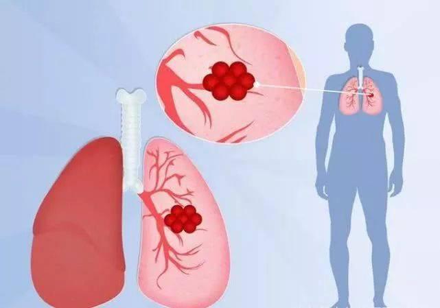 """三处""""疼痛"""",需小心肺癌,除了烟民,还有一类人,最好去查一下"""
