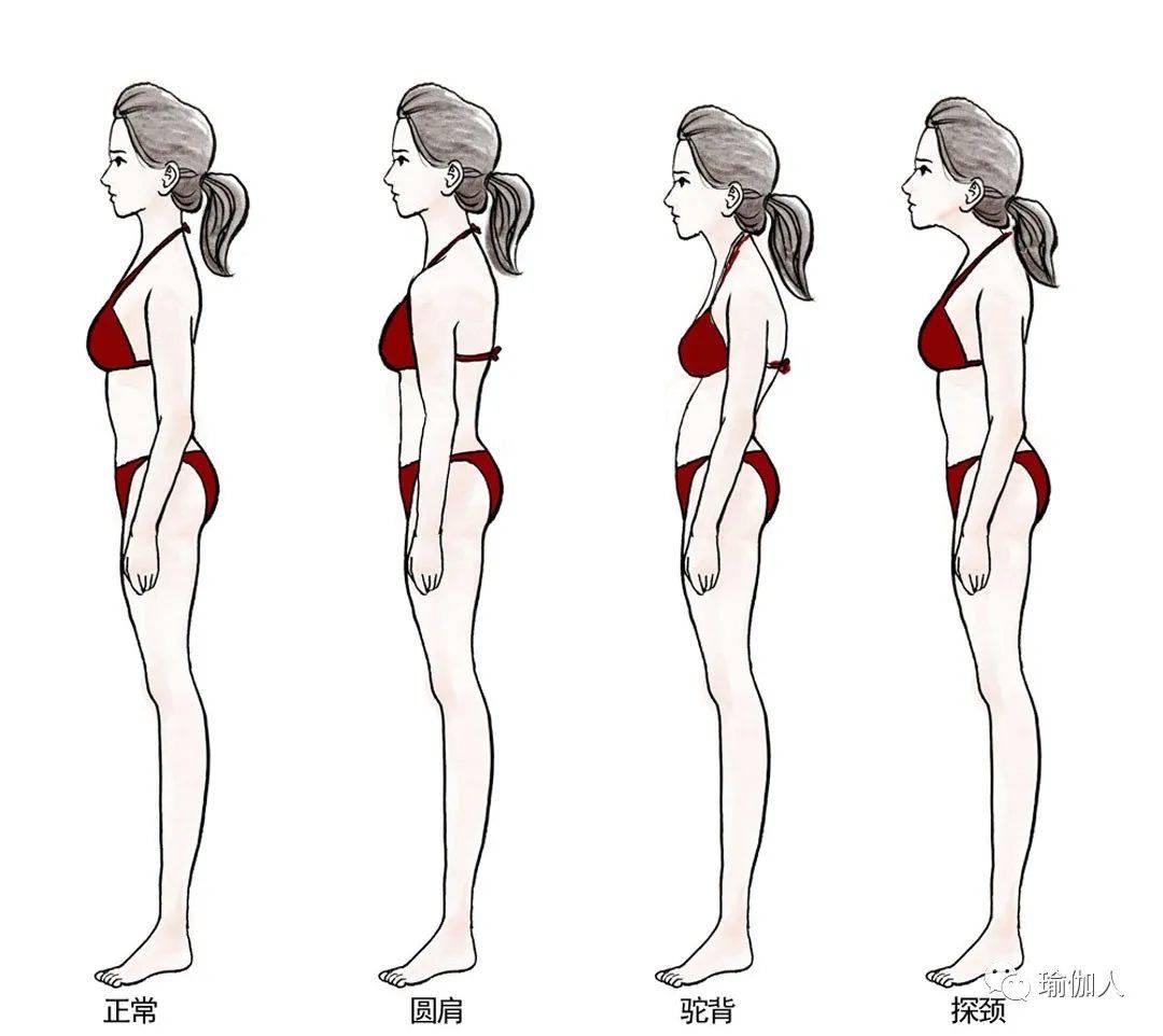 不要让好身材毁在体态上,好体态才有好身材!(附:瑜伽调整)