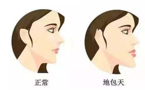 """【科普知识三】""""地包天""""的危害"""