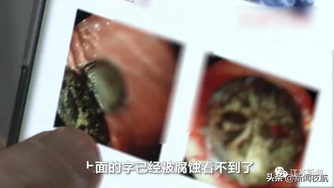 11岁男孩吃饺子吞下2枚硬币,1年后才取出
