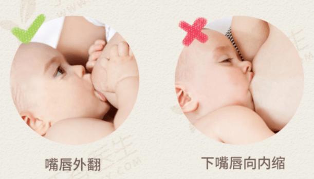 哺乳妈妈乳头有白点或白泡怎么处理?4 招教你解决 (图1)