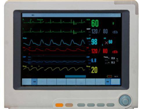 """细数ICU里的""""救命神器"""""""