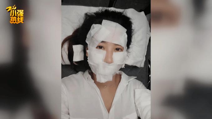 23岁女子做医美,脸上发生奇怪变化,更不可思议的是…